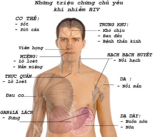 Triệu chứng của bệnh HIV