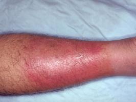 Triệu chứng sưng, nóng, đỏ, đau