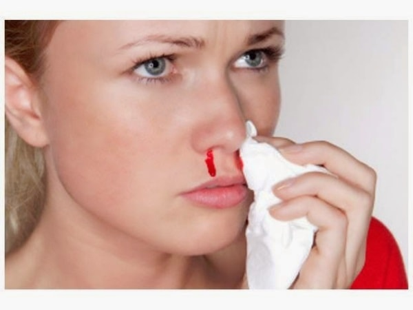 Кровь из носа по утрам у беременных 676