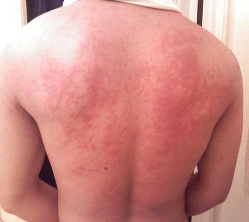 Bệnh dị ứng lúa mì - dấu hiệu, triệu chứng và cách chữa trị