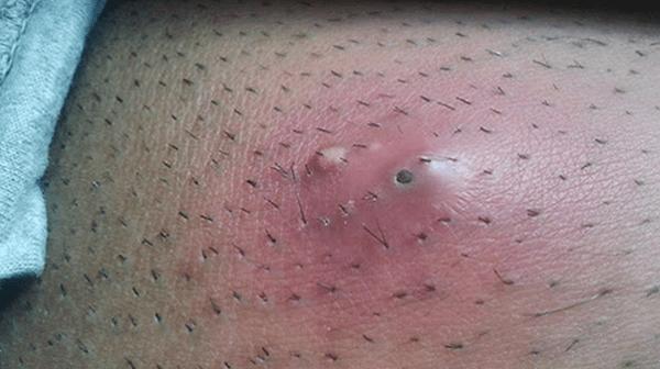 Triệu chứng của bệnh lông mọc ngược