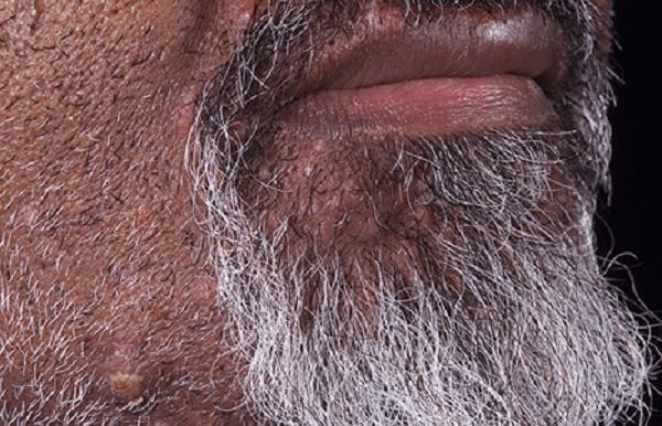 Biến chứng của bệnh lông mọc ngược