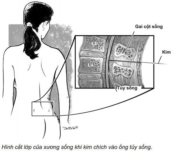 Hình cắt lớp khi chích tủy sống của bệnh nhân nang tarlov